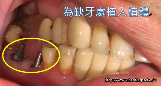 植牙牙齒健康3.PNG