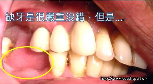 植牙牙齒健康2.PNG