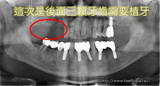 植牙人工植牙快速植牙專業植牙1.PNG