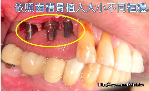 植牙人工植牙快速植牙專業植牙3.PNG
