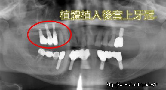 植牙人工植牙快速植牙專業植牙5.PNG