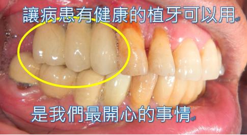 植牙人工植牙快速植牙專業植牙6.PNG