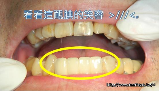 植牙快速植牙人工植牙4.PNG