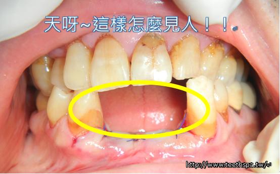 植牙快速植牙人工植牙1.PNG