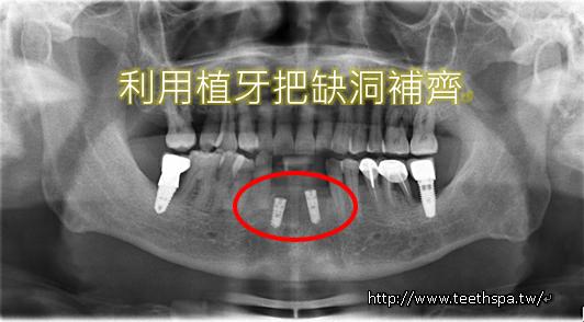 植牙快速植牙人工植牙2.PNG
