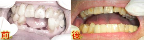 植牙快速植牙人工植牙5.PNG