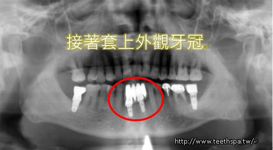 植牙快速植牙人工植牙3.PNG