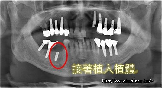 快速植牙植牙3.JPG