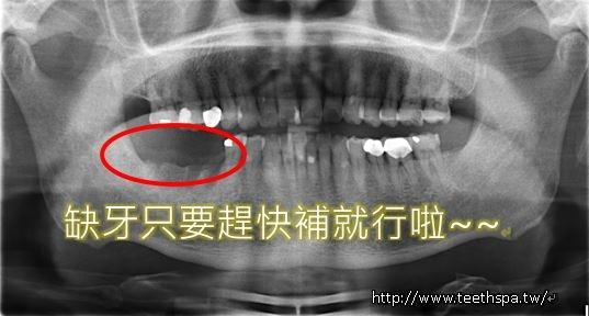 小幸運植牙2.JPG