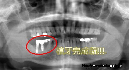 小幸運植牙4.JPG