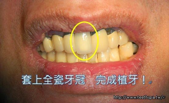 植牙植牙植牙5.JPG
