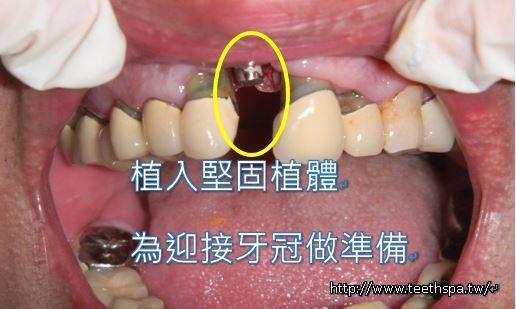 植牙植牙植牙3.JPG