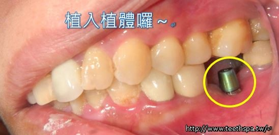 植牙植牙植牙植牙3.JPG