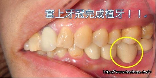 植牙植牙植牙植牙5.JPG