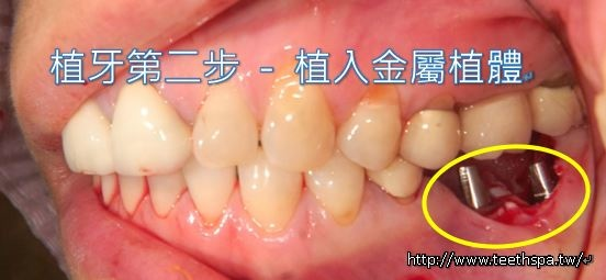 台北植牙3.JPG