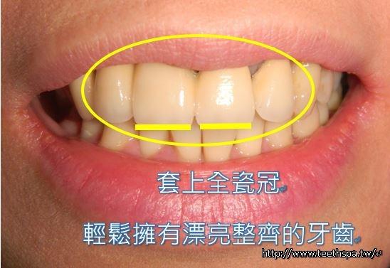 全瓷牙冠美齒3.JPG