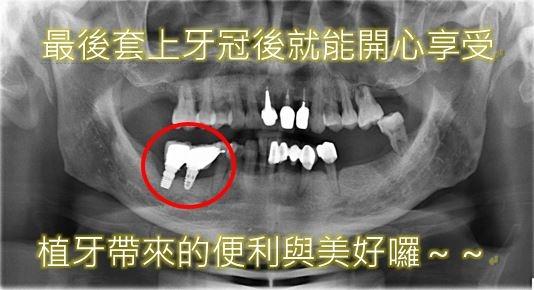微創植牙微創植牙經驗4.JPG