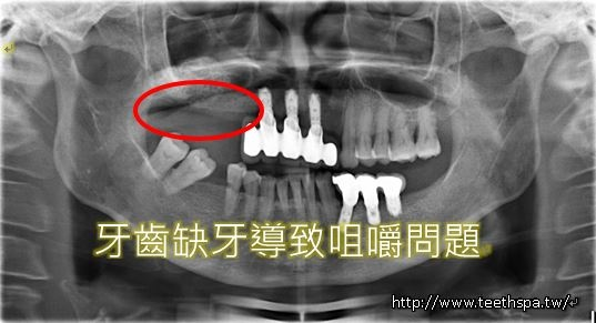 缺牙植牙1.JPG