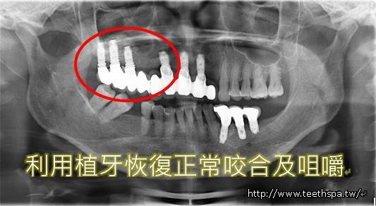 缺牙植牙5.JPG