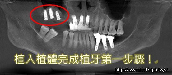缺牙植牙3.JPG