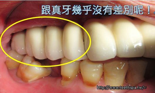 缺牙植牙6.JPG
