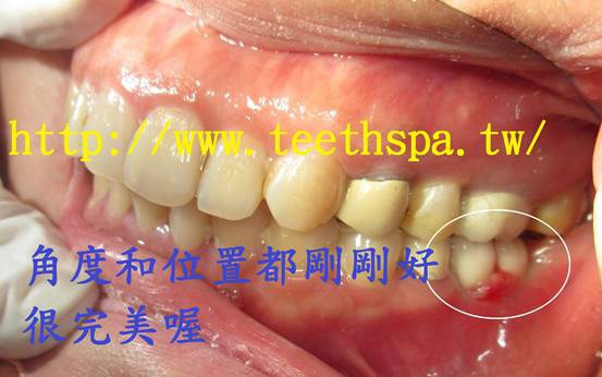https://pic.pimg.tw/nana98117/1481168386-3855568379.jpg