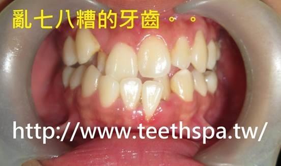 https://pic.pimg.tw/nana98117/1481002993-2289339416.jpg?v=1481002995