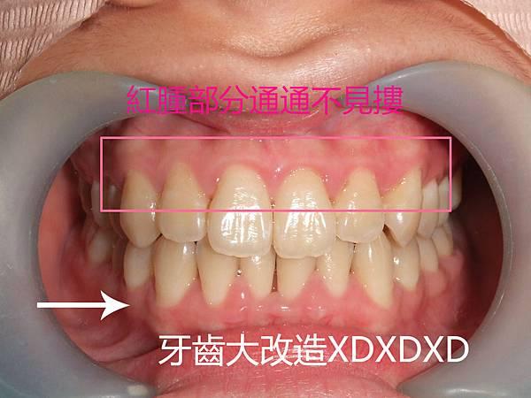 DSCF5437_meitu_2.jpg