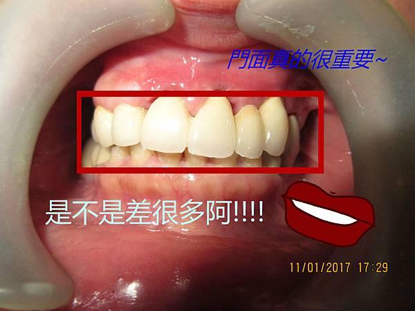 P3120D20170111_172914161_meitu_5.jpg