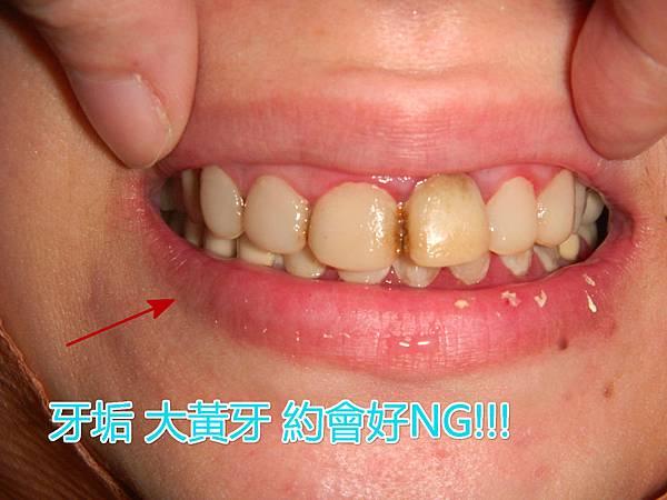 P2250D20150611_095320523_meitu_1.jpg