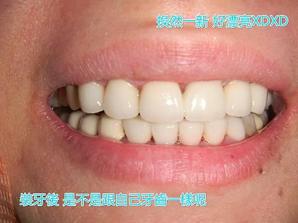P2250D20150618_102718184_meitu_2.jpg