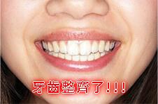 牙套人1-2