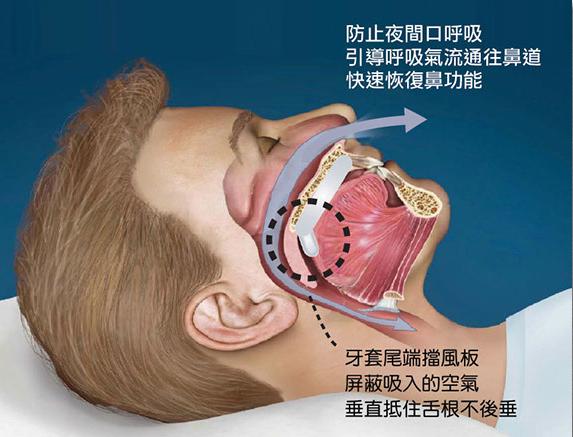 新型止鼾牙套的構造原理