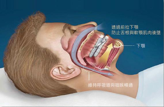 一般止鼾牙套構造原理