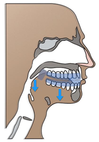 牙套示意圖.png