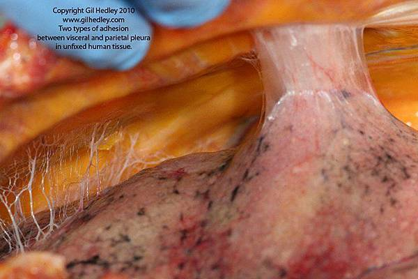 adhesions-between-visceral-and-periatal-pleura1.jpg