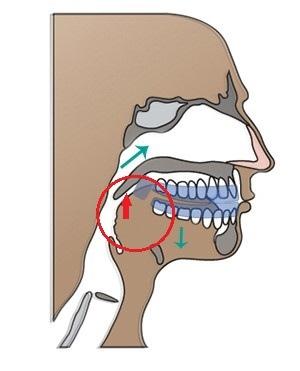 牙套是意圖.jpg