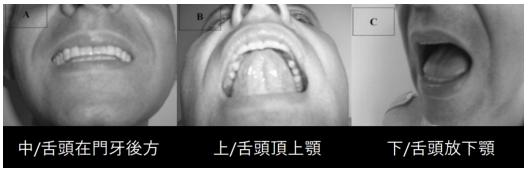 舌頭位置.png