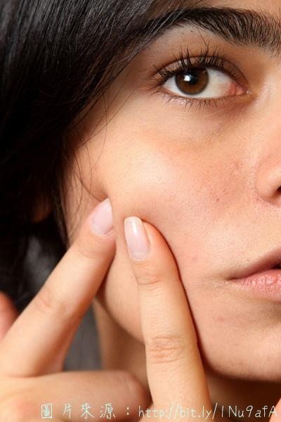 清粉刺方法步驟