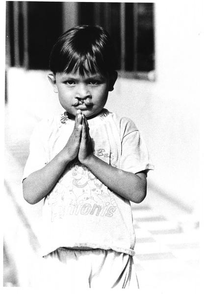 柬埔寨小男孩手術前.jpg