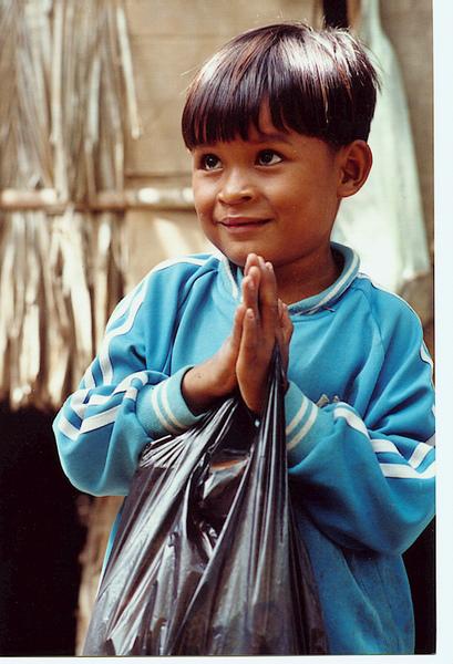 柬埔寨小男孩手術後.JPG