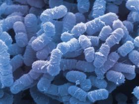 clostridium-perfringens-bacteria-are-anaerobic-food-borne-pathogens_u-l-q10e9mo0.jpg