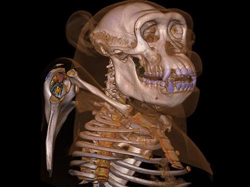 3D照片透視身體結構