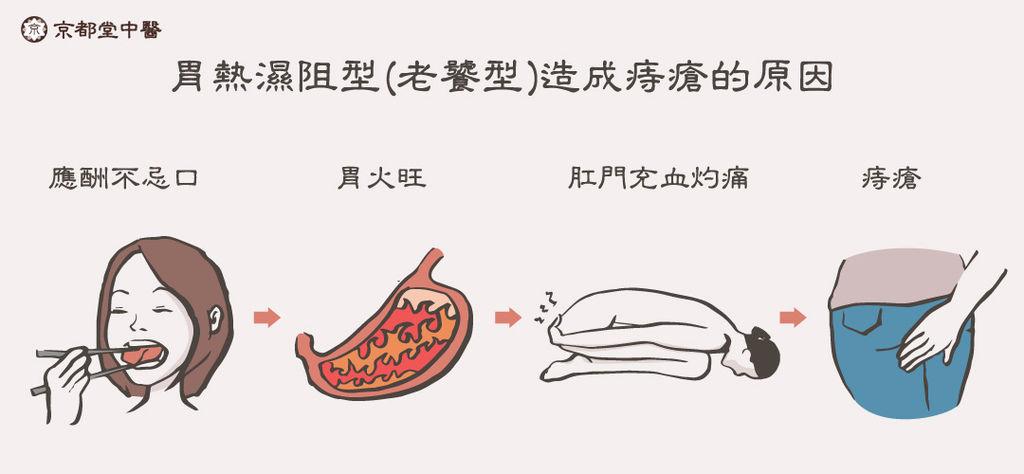 京都堂中醫減肥減重瘦身埋線中醫痔瘡私密處感染白帶月經不順經痛推薦肥胖五型肝鬱氣滯型胃熱濕阻型 (4)