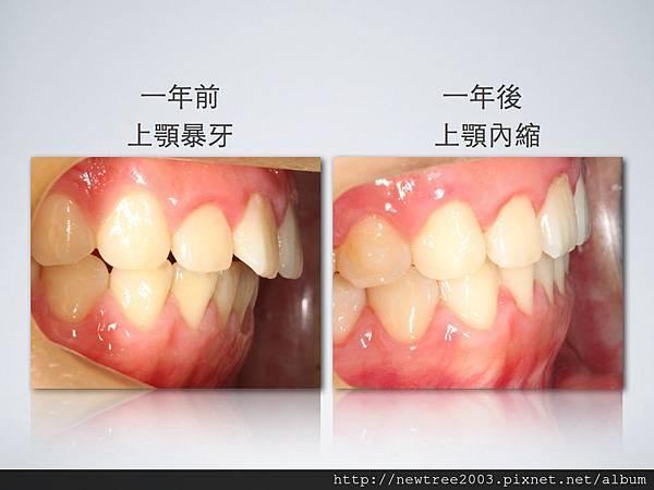 隱適美改善暴牙