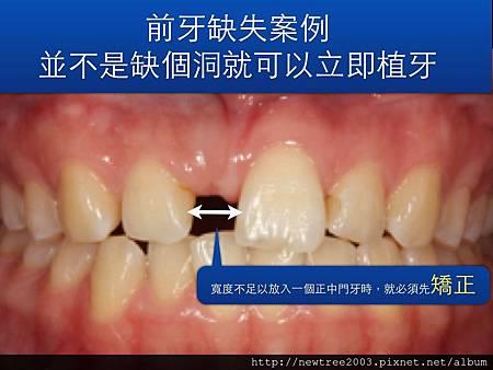 前牙植牙案例.001(1)