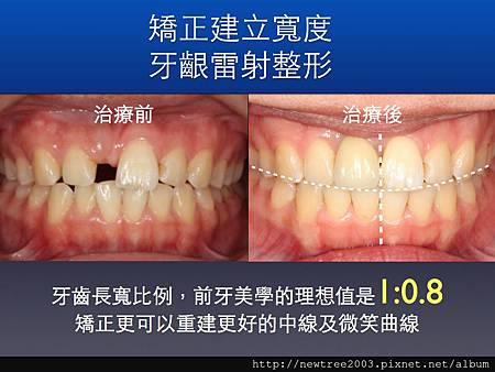 前牙植牙案例.003(1)