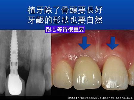 前牙植牙案例.004(1)
