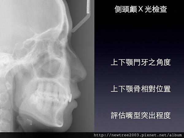 nobel植牙.011