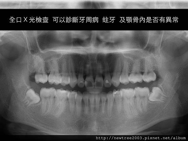 nobel植牙.010